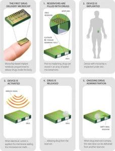 Un système de microréservoirs activable via une télécommande permet de disperser dans le corps une dose de contraceptif.