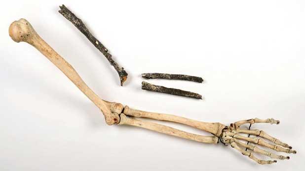 Les 3 os longs du bras gauche d'un pré-Néandertalien (en haut) en regard d'un bras moderne retrouvé sur le site deTourvilIe-Ia-Rivière (Seine-Maritime) en 2010.