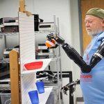 technologie-bras-bioniques-photo-3
