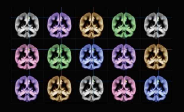 IRM Bonheur dans le cerveau