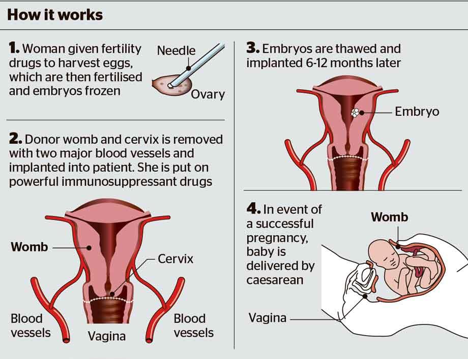 uterus-transplant