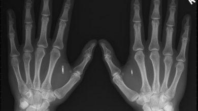 Photo of Robert Nelson s'implante une puce NFC dans la main !