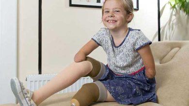 Enfants amputés : l'espoir de l'impression 3D