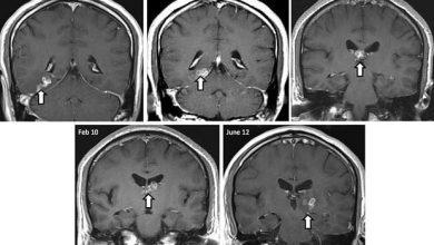 Ver solitaire : un homme a vécu 4 ans avec un ténia dans la tête !
