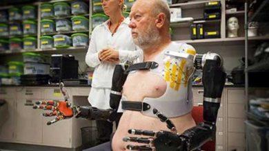 Photo of Technologie : il contrôle ses bras bioniques par la pensée