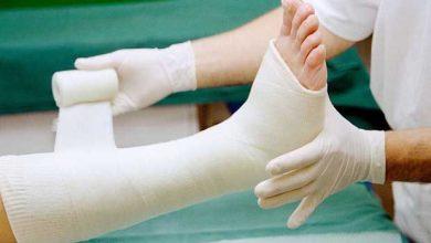 Des cellules souches pour réparer les fractures des os et les déchirements du cartilage