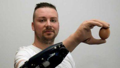Des mains bioniques au lieu de mains greffées