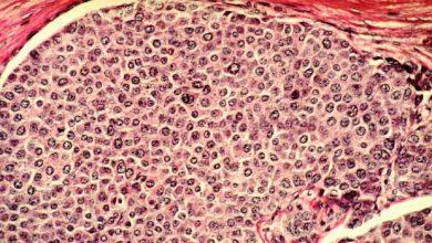 Photo de Les cellules cancéreuses affaiblissent le corps en simulant le diabète