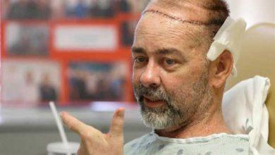 Trois greffes dont une crânienne réalisées en même temps sur un patient aux USA