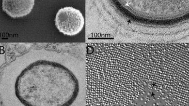 Photo de Sibérie : découverte d'un virus géant, inoffensif pour l'homme