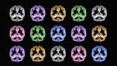 Est-ce que le bonheur est vraiment dans le cerveau ?